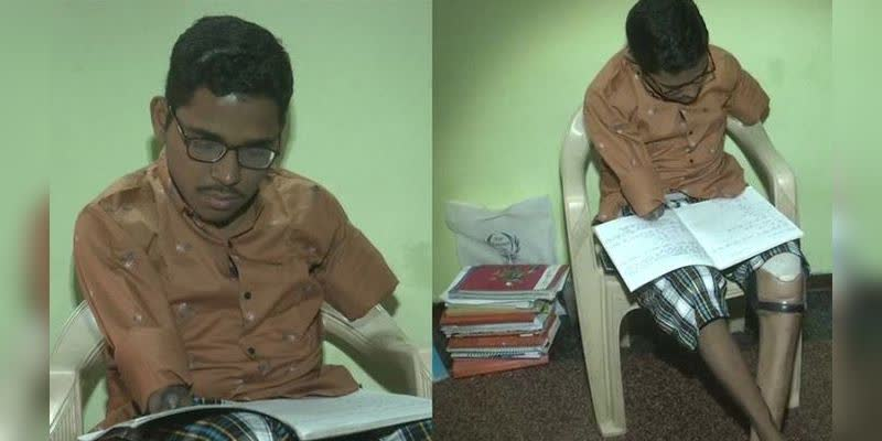 Lost-Hands-Legs-In-Accident-Gujarat-Boy-To-Take-Exam-Using-Elbows