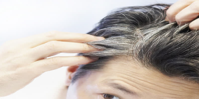 Does-depression-cause-premature-grey-hair